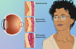 Scientific depiction of the effects of wet and dry AMD on the eyes.