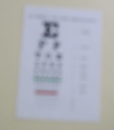 Blurry printed text on an eye chart, seen without the use of eSight glasses for the visually impaired.